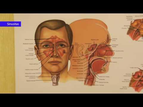 kaip pašalinti triukšmą galvoje su hipertenzija