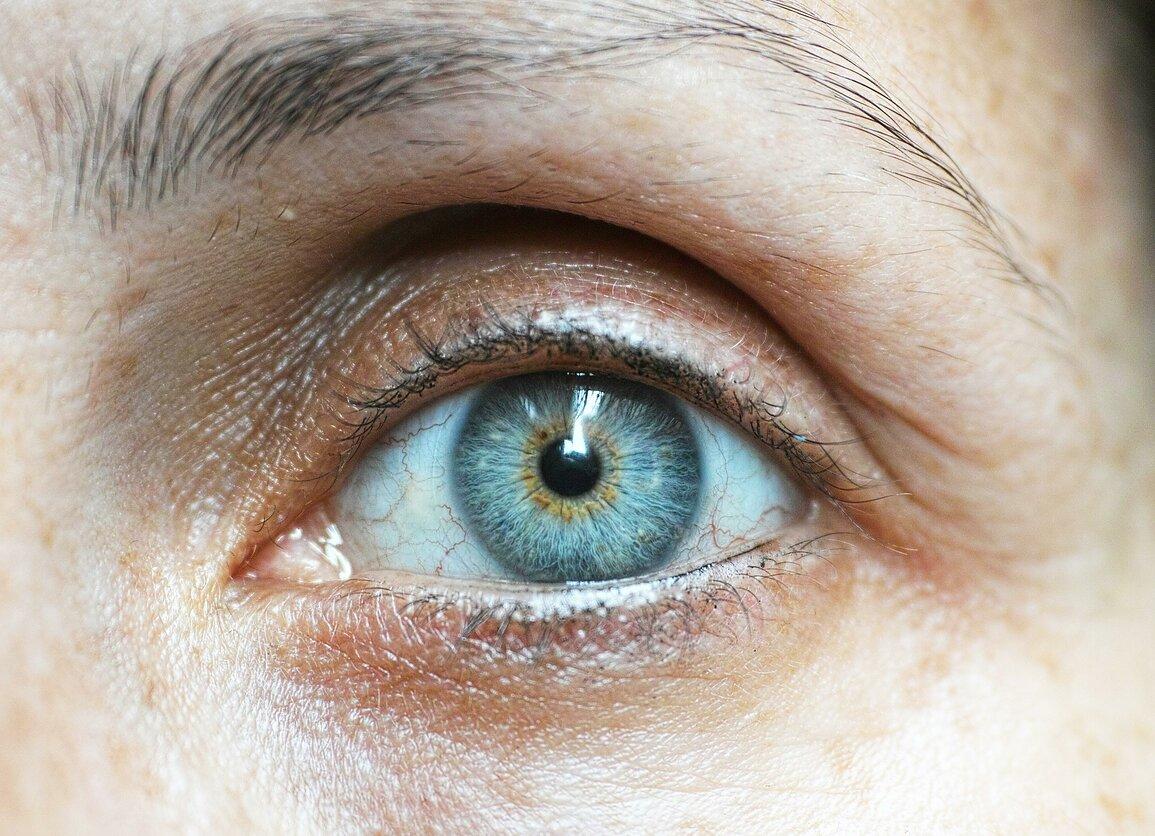hipertenzija akyse