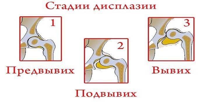 hipertenzija su audinių displazija