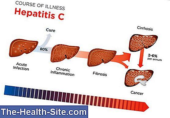 hipertenzija su hepatitu C)