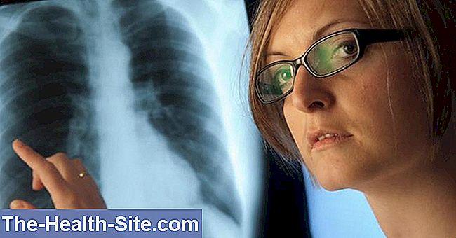 kaip ir kaip gydyti plaučių hipertenziją