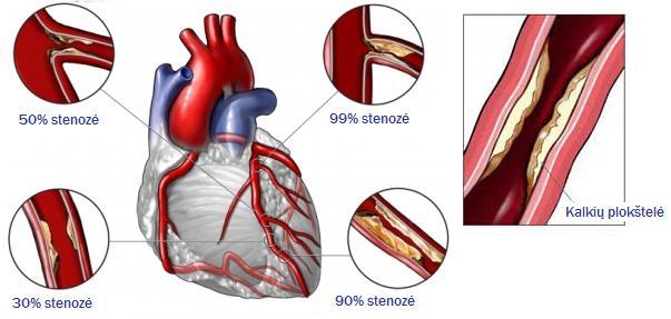 koronarinė širdies liga ir psichinė sveikata)