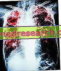 Naudingi ir kenksmingi produktai hipertenzijai