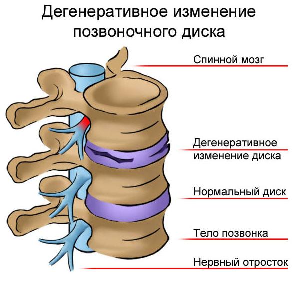 chondroksidas ir hipertenzija