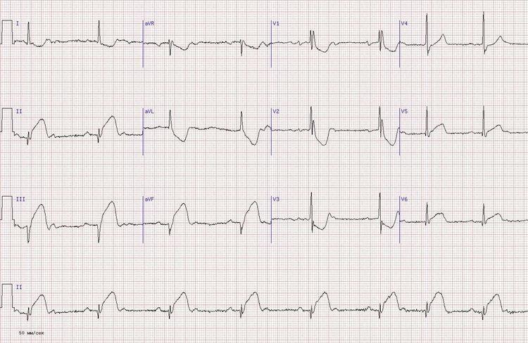 miokardo siena su hipertenzija