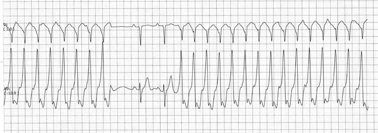 su hipertenzijos kardiograma)
