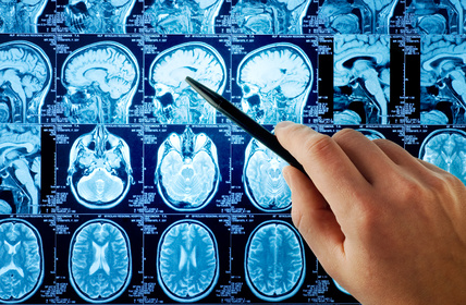 hipertenzija ir smegenų auglys