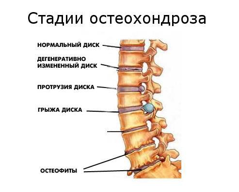 Hygroma - kas tai? Nuotraukos, simptomai ir gydymas - Bronchitas