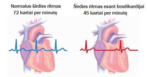 nereguliarus širdies plakimas