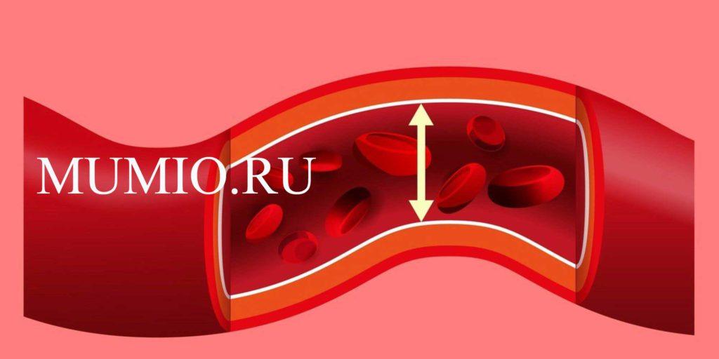 hipertenzija kaip gydyti liaudies metodus