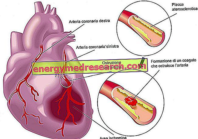 alimentų sveikata širdis)