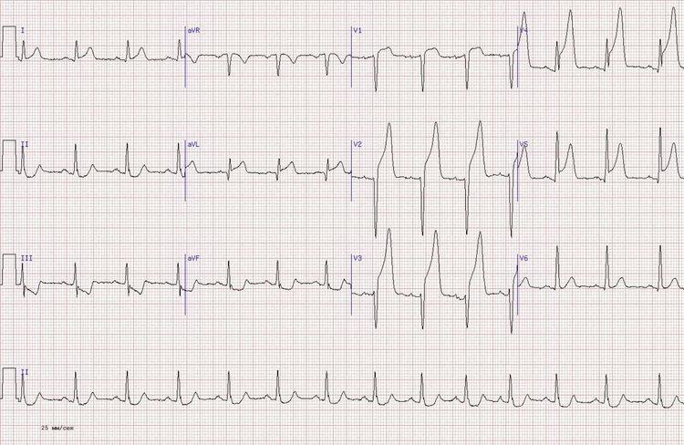 vaizdo įrašai apie hipertenziją kaip sportuoti salėje su hipertenzija