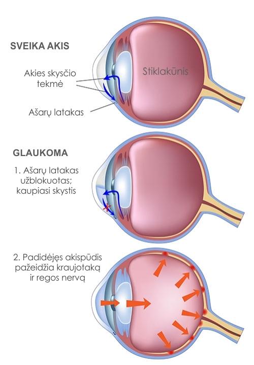 vaistai nuo hipertenzijos su glaukoma