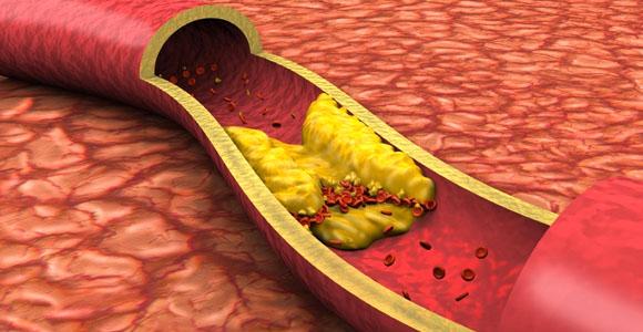veiksmingos hipertenzijos priemonės