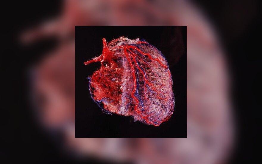 hipertenzija nuo vaikystės