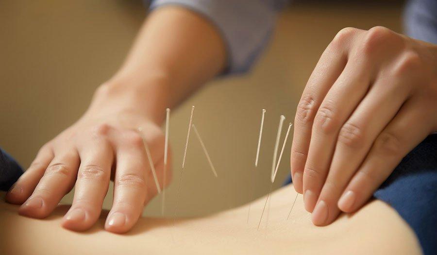 hipertenzija ir akupunktūros taškai