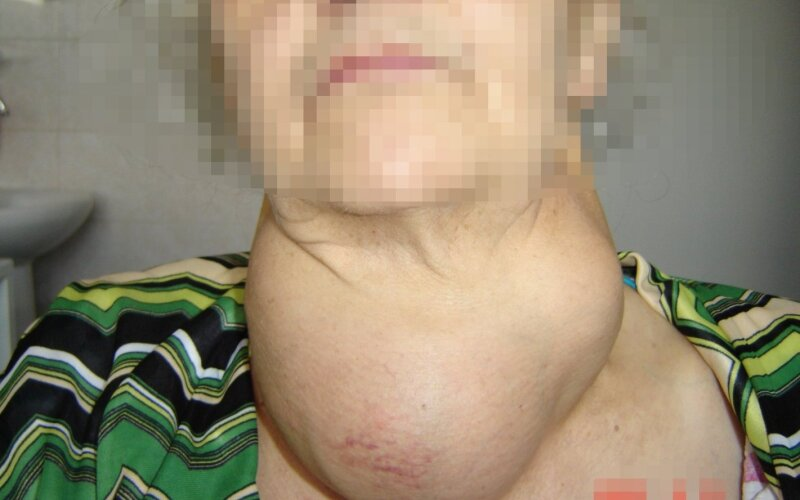 gūžys su hipertenzija)