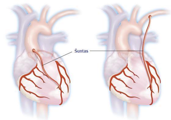 koronarinės ligos sveikatos informacija apie širdį)