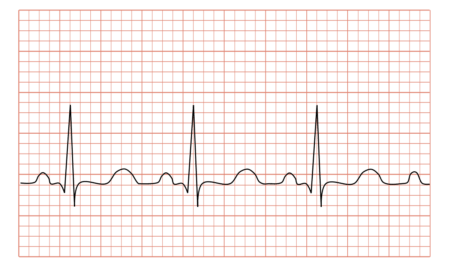 Geriausios širdies ir kraujagyslių tabletės - Aterosklerozė November