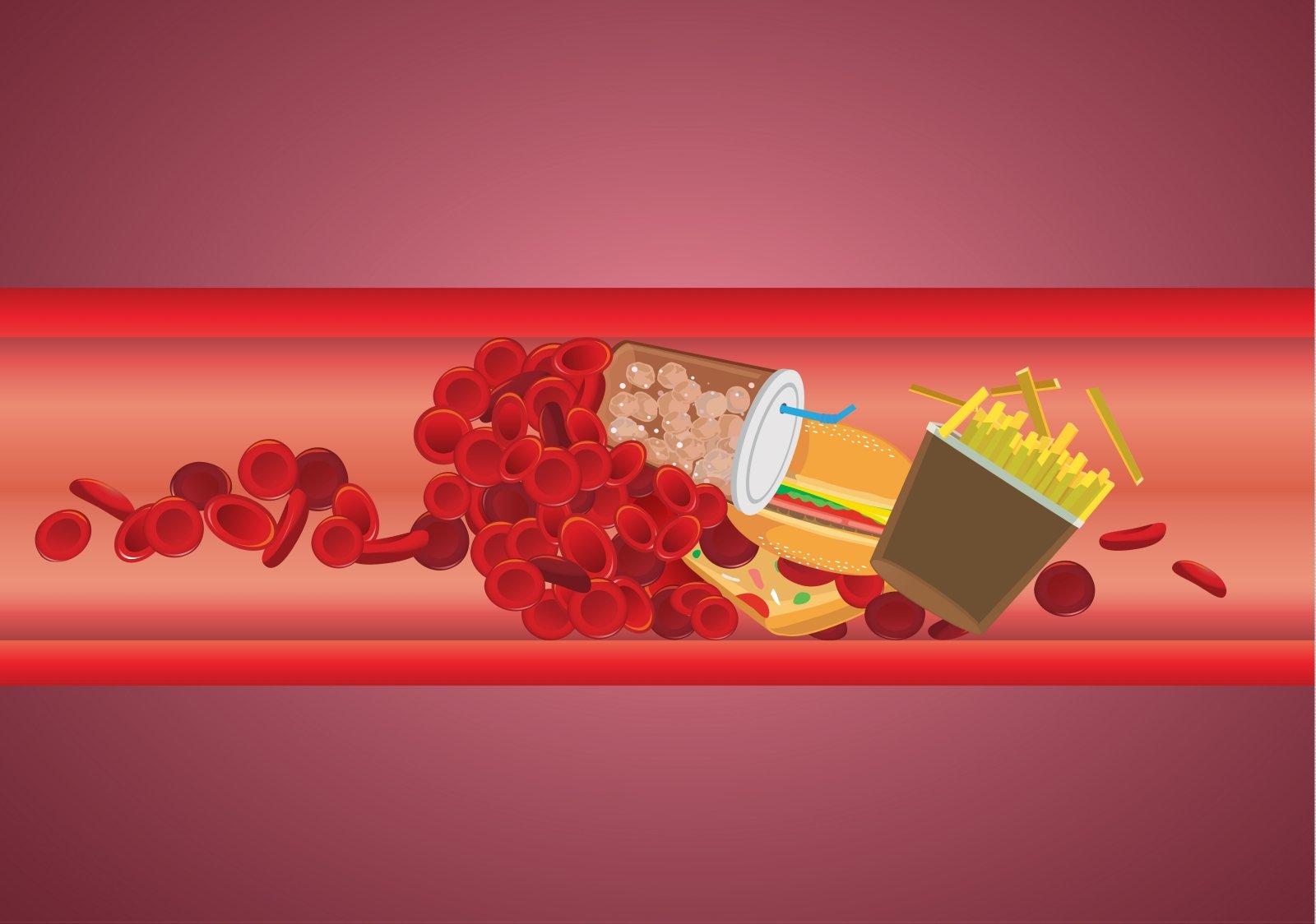 Cholesterolio dieta