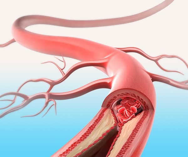 valant kraujagysles su hipertenzija