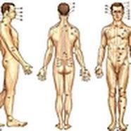 Akupunktūra: gydymas adatų bakstelėjimais