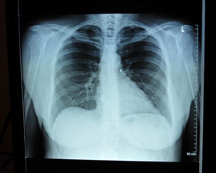 hipertenzija ten, kur skauda tradicinė medicina apie hipertenziją
