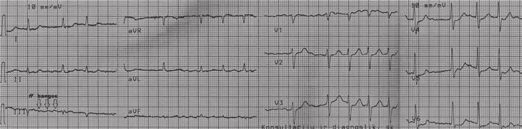 formuojantis ir hipertenzijai