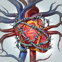 hipertenzija ir išsiplėtusi širdis