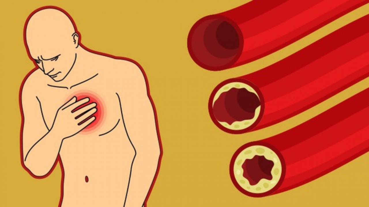 Česnakai: kraujagyslių stiprinimas ir valymas » SAVAITĖ – viskas, kas svarbu, įdomu ir naudinga.