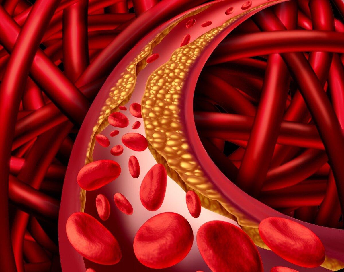 dietinis cholesterolis riboja širdies sveikatą