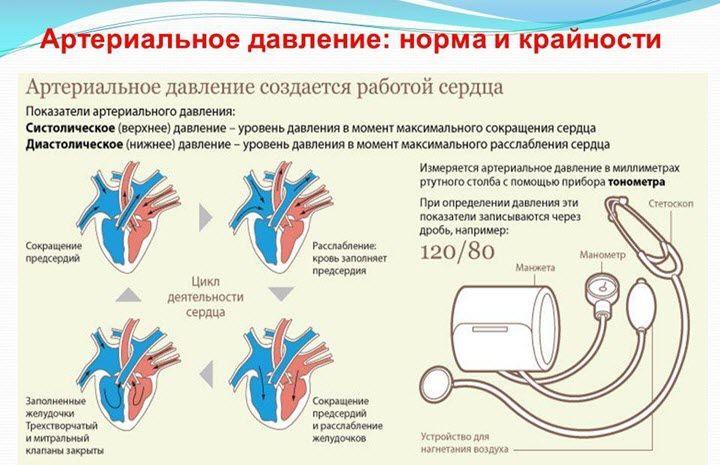VSD hipertenzijos fone