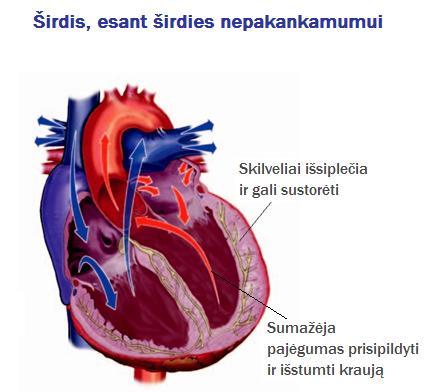 širdies sveikatos problemų simptomai)