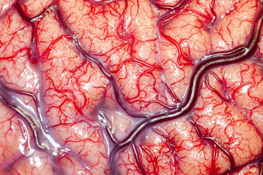 skausmo malšintojai galvos skausmams, sergantiems hipertenzija)