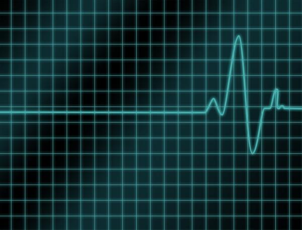 mechaninės hipertenzijos priežastys