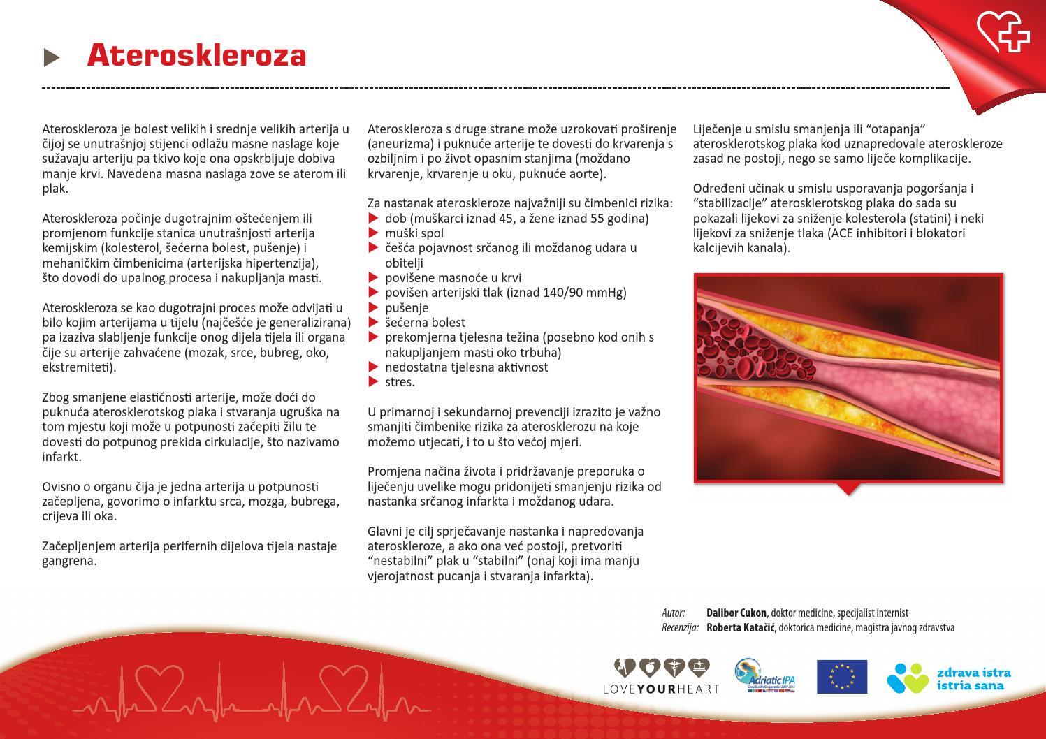 hipertenzija su aneurizma)
