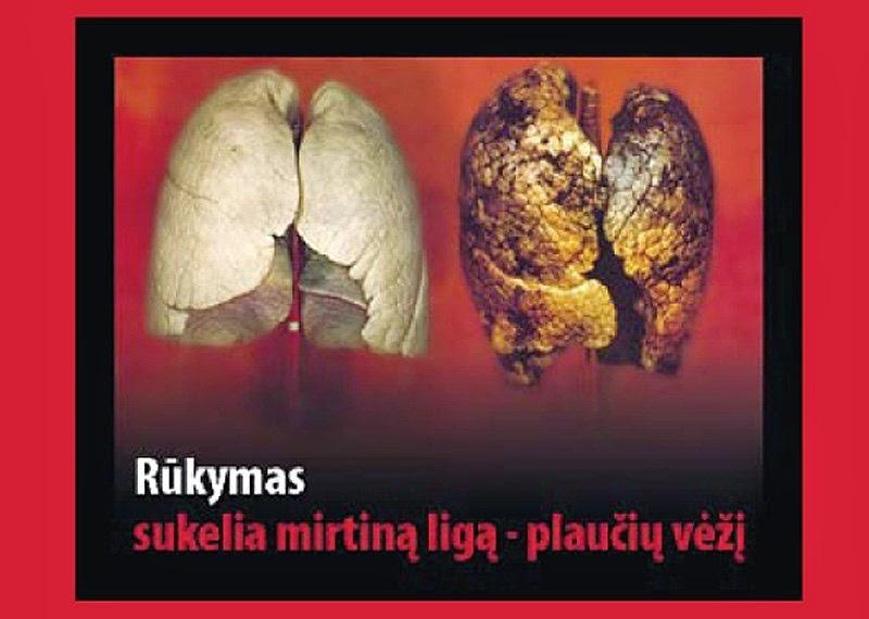 Rūkymas ir spaudimas - Tachikardija
