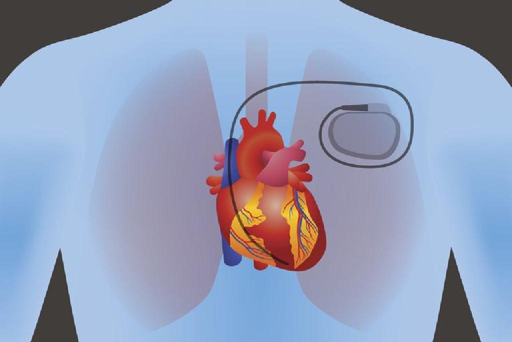 hipertenzijos gydymas be narkotikų forumo