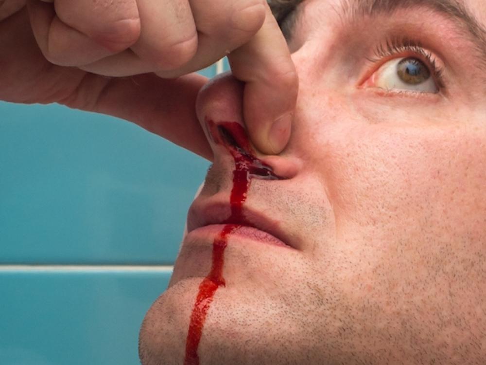hipertenzija dažnai kraujuoja iš nosies