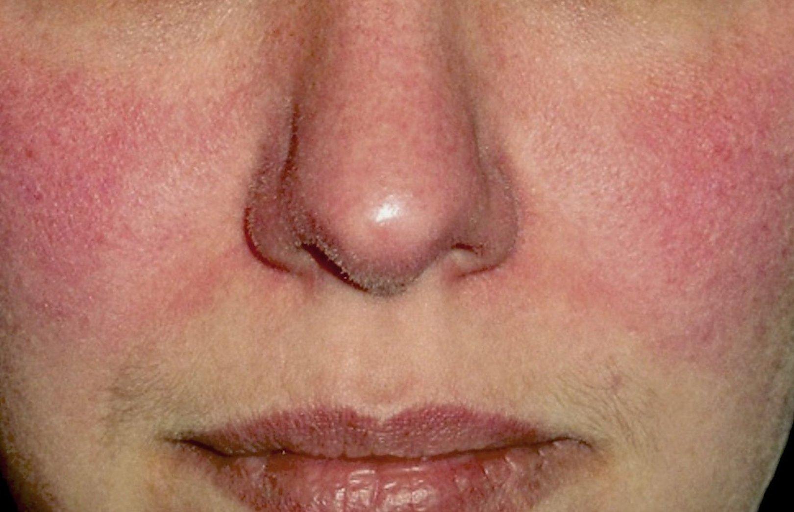 sergant hipertenzija, veidas parausta