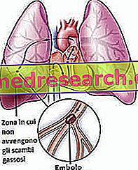 hipertenzija su plaučių komplikacija