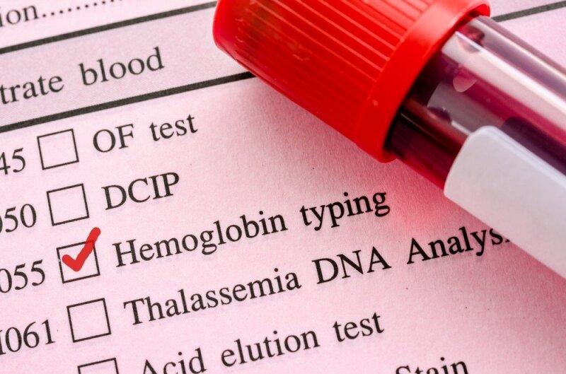 Hemoglobino trūkumo išdavikai