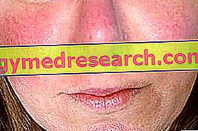 Kas yra veido paraudimas, ar tai pavojinga, kaip gydyti ligą