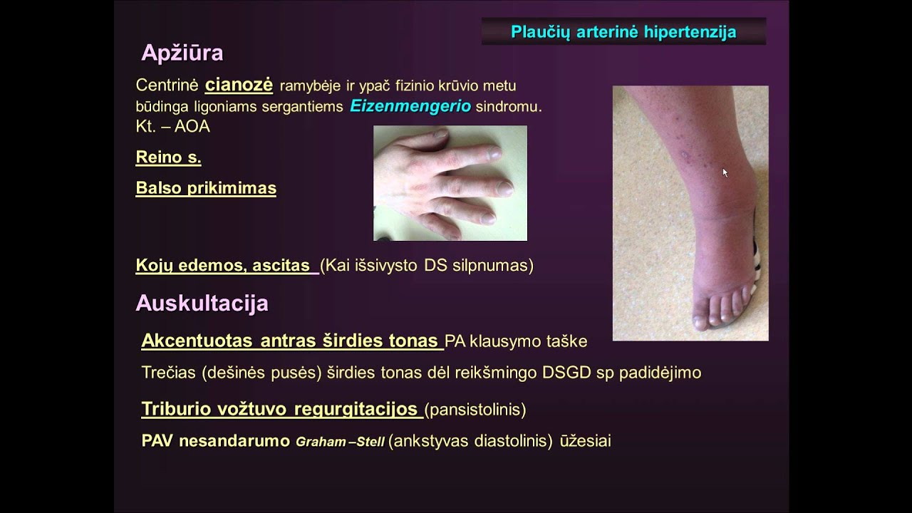 sąnarių hipertenzija)