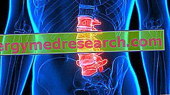 Kas yra stuburo arterijos sindromas? - Hipertenzija November