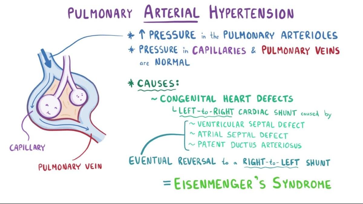 hipertenzija ade-norma