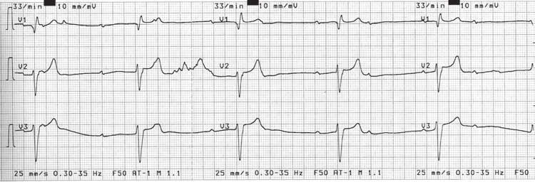 pritūpimas hipertenzijai gydyti antrojo trečiojo laipsnio rizikos hipertenzija