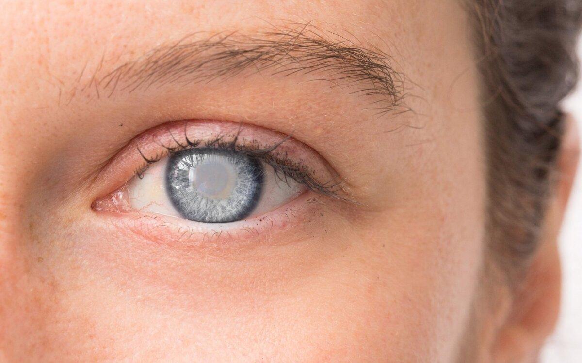 hipertenzija akių paraudimas)