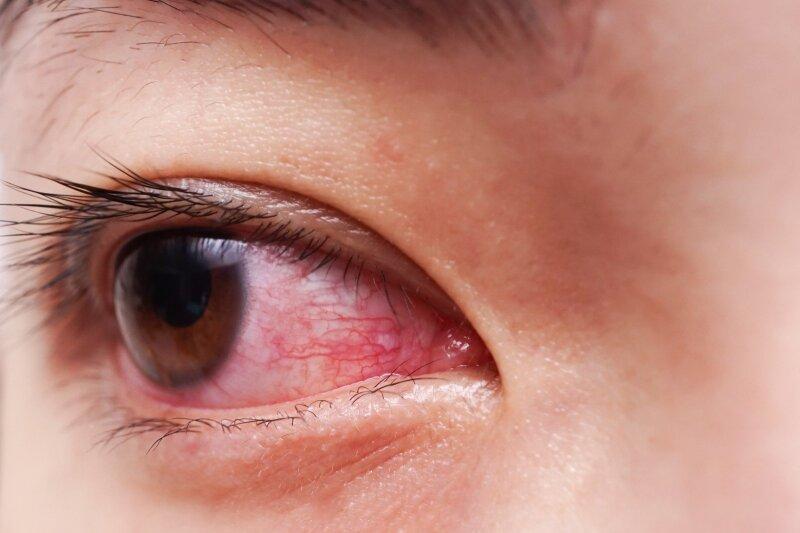 kapiliarai akies hipertenzijoje hipertenzija vibroakustinė terapija
