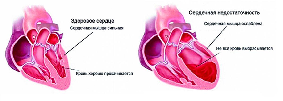 hipertenzija sporto pulsas kaip hipotenzija virsta hipertenzija